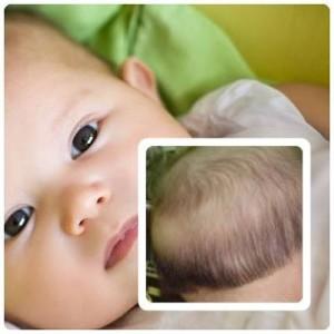 Trẻ sơ sinh bị rụng tóc sau gáy có đáng lo ngại không?
